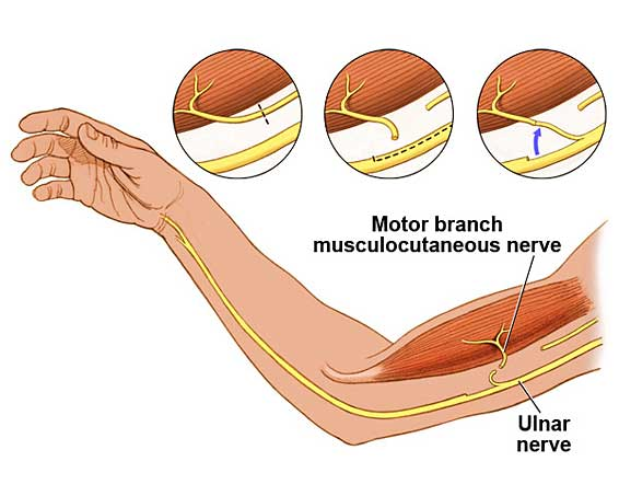Illustration of a nerve transfer
