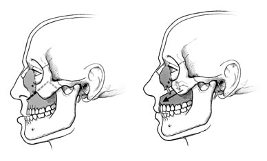 Illustration of upper jaw surgery, showing how the jaw is divided and moved forward.