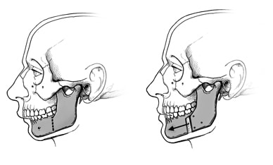 Illustration of lower jaw surgery, showing how the jaw is divided and moved forward