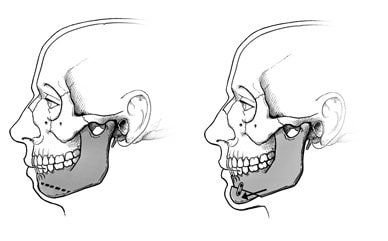 Illustration of chin surgery, showing how the jaw is divided and moved forward.