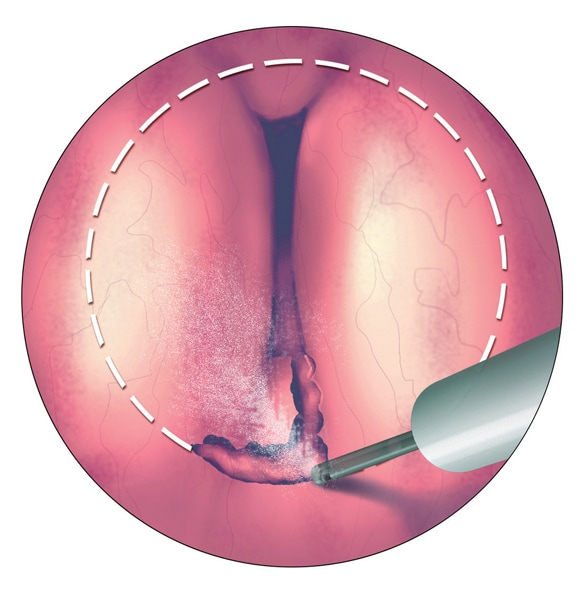 Image of prostatic urethra with incision