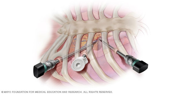 Illustration of minimally invasive heart surgery