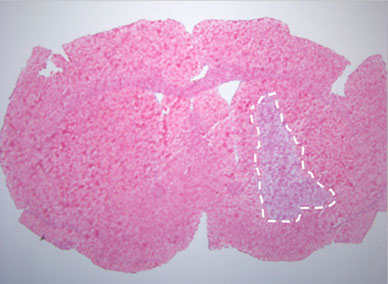 Micrograph with outlined tumor for test of blood-brain barrier integrity in mouse pretreated with placebo