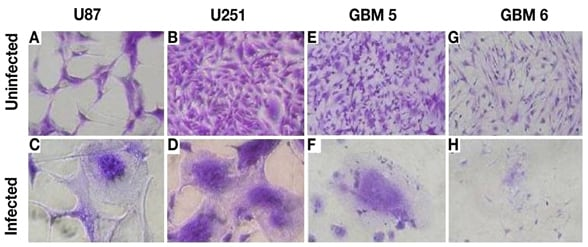 Images of glioma cells that have fused to form syncytia