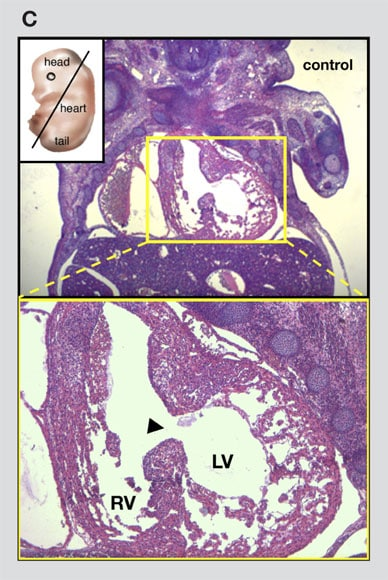 Image of mouse embryo with ventricular septal defect
