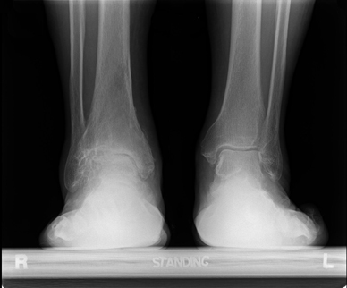 Radiograph prior to treatment