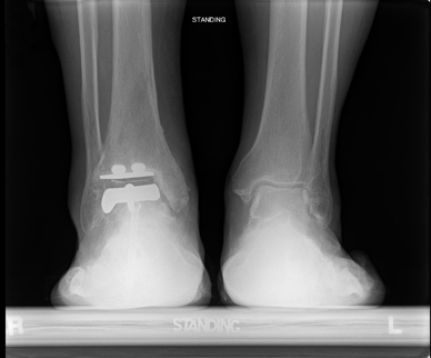 Radiograph after implantation