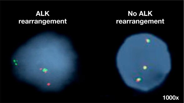 Graphic of representative images of ALK rearrangement