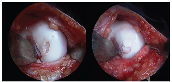 Osteochondral autograft mosaicplasty with two plugs