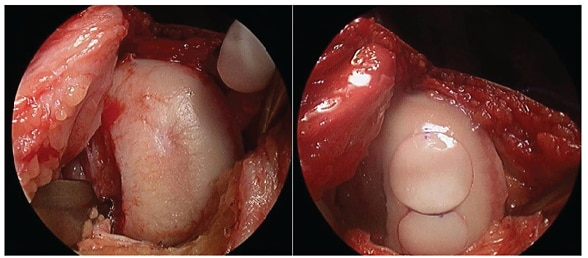Chondral defect of the mid weight-bearing condyle and osteochondral allograft
