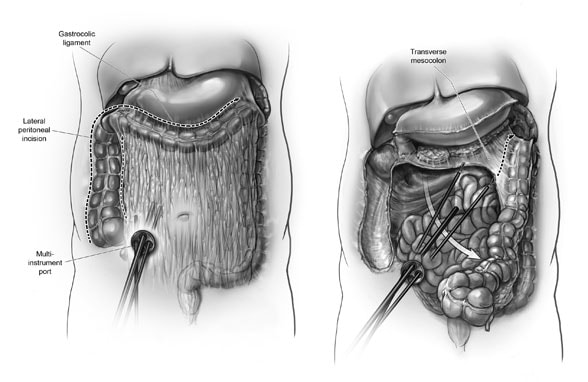 Image of how mesentery is dissected and divided in single-incision colectomy