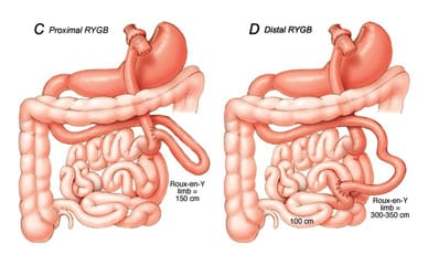 Roux-en-Y gastric bypass (RYGB) proximal or distal