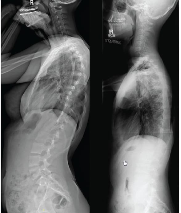 EOS lateral scoliosis spine study
