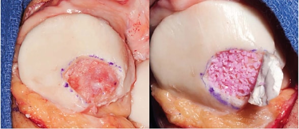 Juvenile particulated chondral allograft transplant