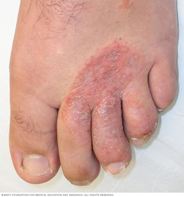 Image of athlete's foot