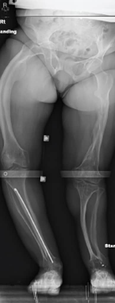 Standing hip-to-ankle radiograph showing 5-cm leg-length discrepancy