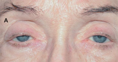 Bilateral ptosis, preoperative view