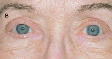 Bilateral ptosis, postoperative view