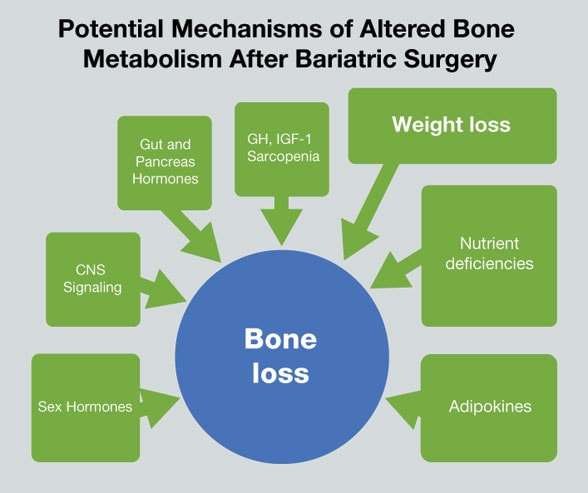 Chart of potential mechanisms of altered bone metabolism after bariatric surgery