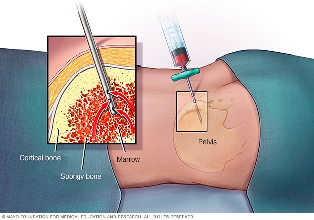 Illustration showing a needle suctioning out liquid bone marrow from hipbone