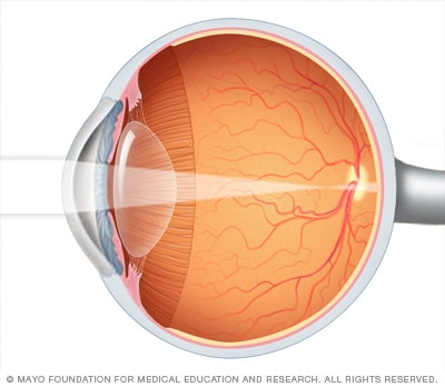 Image showing nearsightedness (myopia)