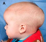 Seven images of patient with craniosynostosis, preoperative view through postoperative result
