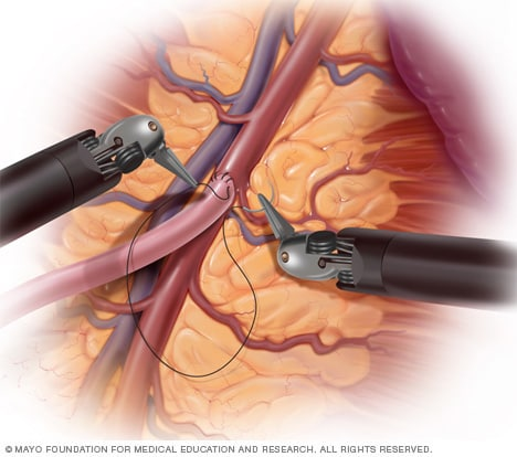 Illustration of robot-assisted heart surgery