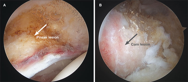 Image of acetabular bony over-coverage and femoral bony bump before resection