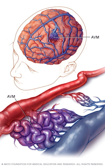 Image of a brain AVM