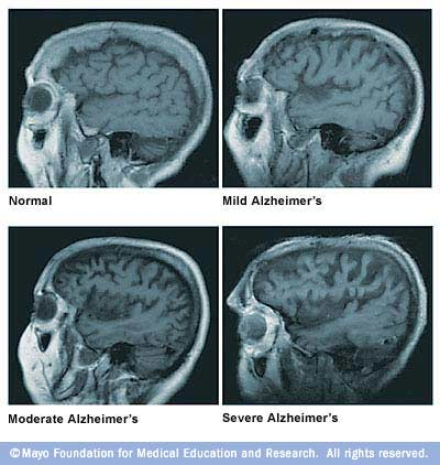 Brain atrophy and Alzheimer's