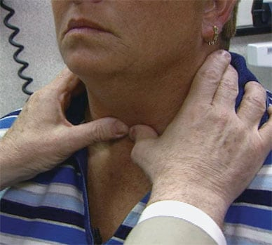 Image of palpation of the thyroid gland