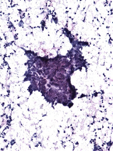 Image of thyroid cytology of a specimen of papillary thyroid carcinoma