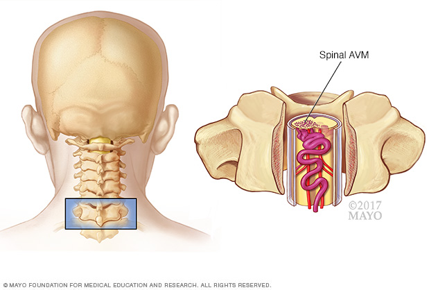 Image of a spinal arteriovenous malformation