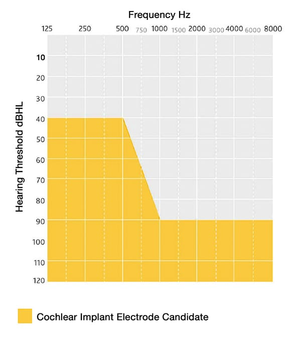 Graph of audiogram of cochlear implant candidates