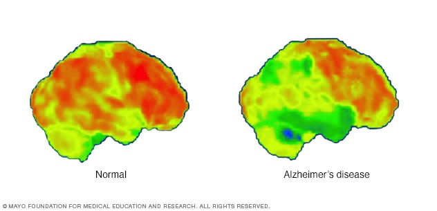 PET scans of the brain for Alzheimer's disease