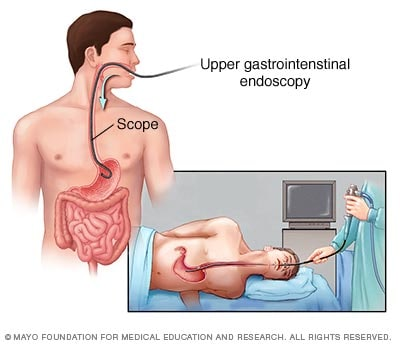 Illustration showing endoscopy