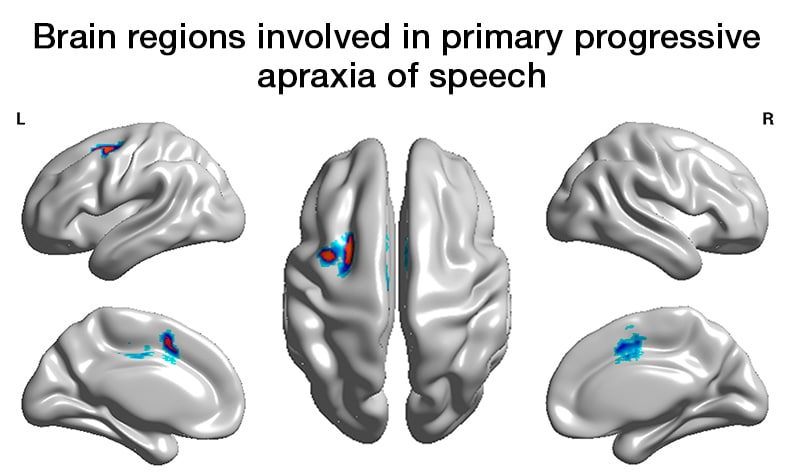 Images of brain regions involved in primary progressive apraxia of speech