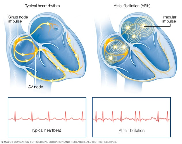 Illustration showing atrial fibrillation