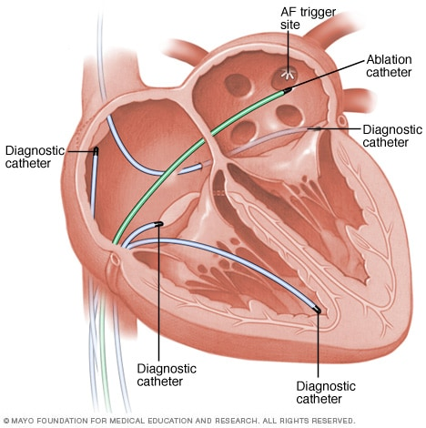 Catheter ablation to isolate the pulmonary veins to treat atrial fibrillation