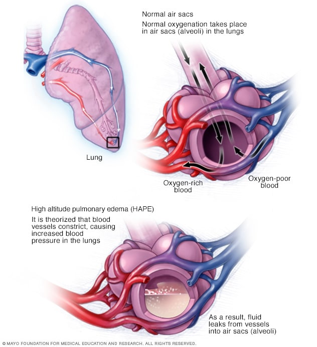 Illustration showing high-altitude pulmonary edema