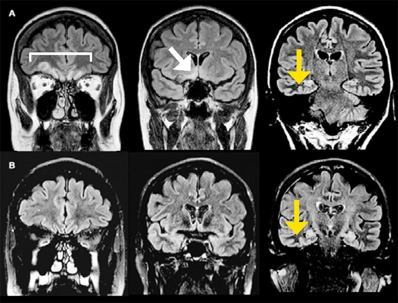 MRI images of woman experiencing frequent focal seizures and memory disturbance