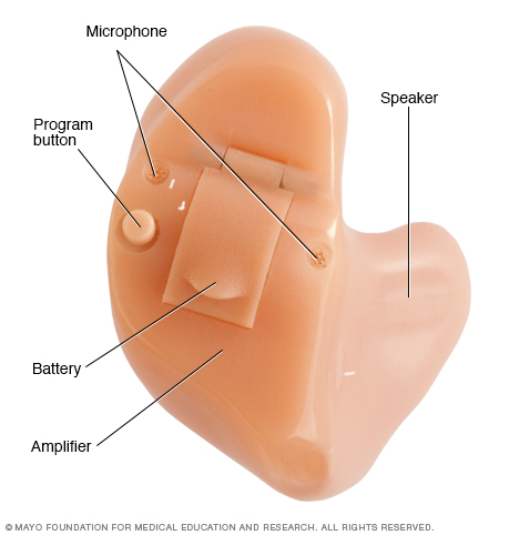 Image of hearing aid with common parts labeled