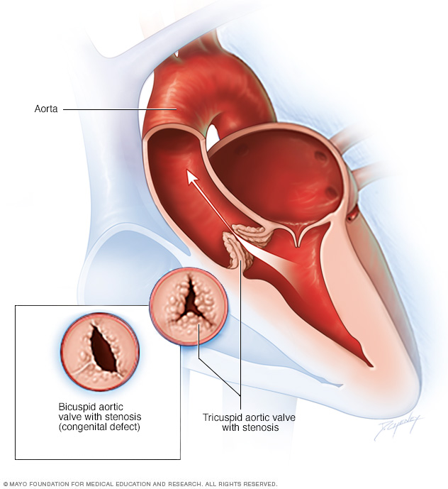 Illustration showing aortic valve stenosis