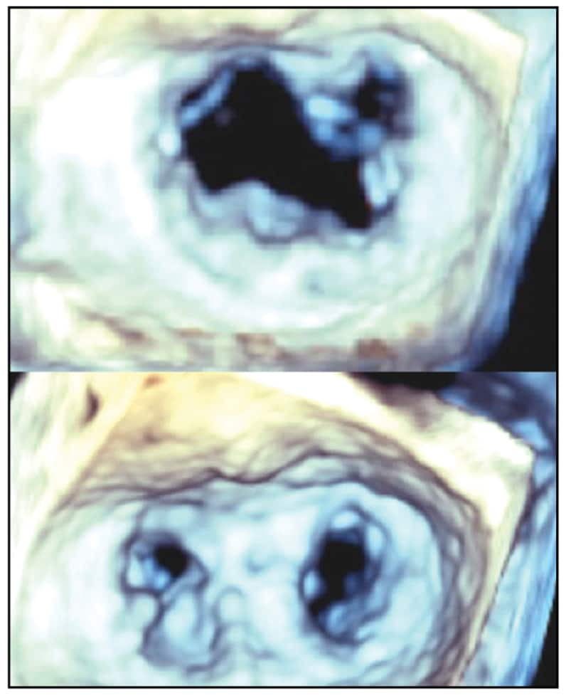Image of mitral valve before and after repair