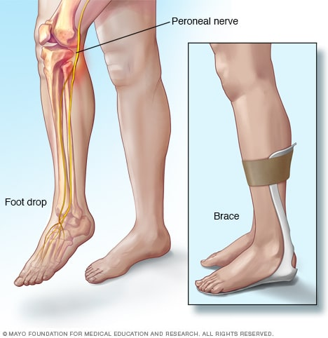 Illustration of foot drop and brace