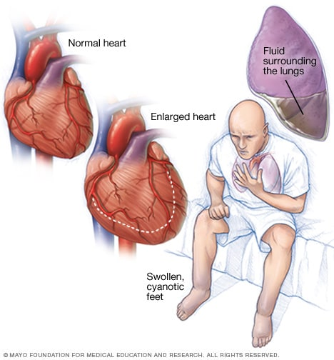 Illustration of a person with heart failure