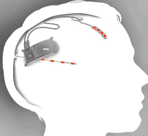 Image of neurostimulator with implanted electrodes