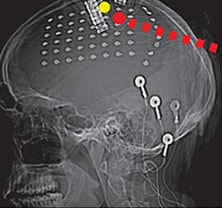Image of EEG performed to localize seizure onset