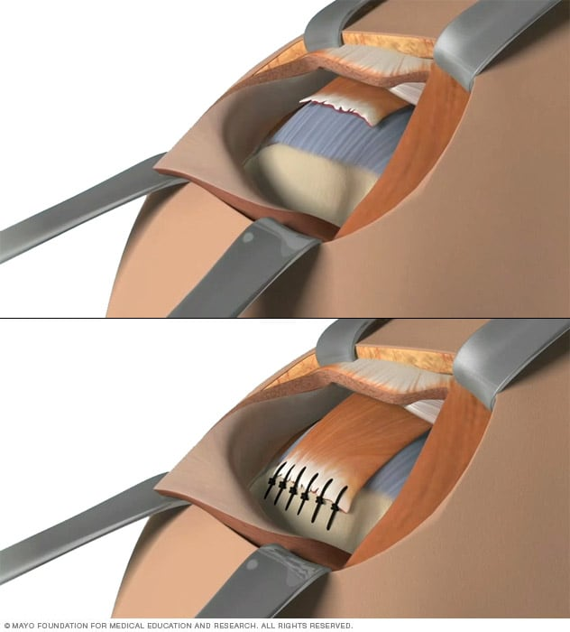 Illustration showing open repair of rotator cuff
