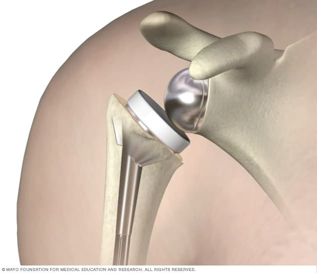 Illustration of a reverse shoulder replacement